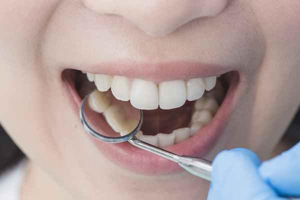 Czy dieta wpływa na zdrowie i kolor zębów?